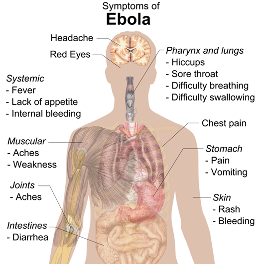 Awareness: Symptoms of Ebola
